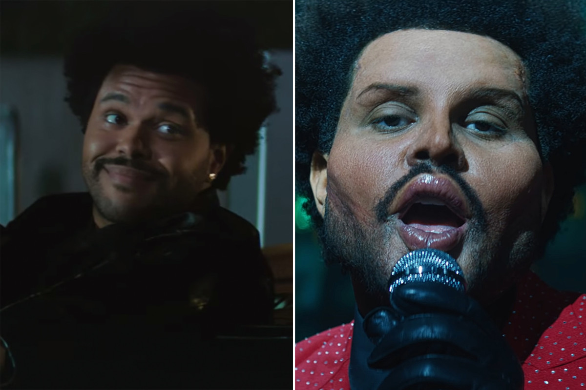 The Weeknd Shows A Real Face After 'Plastic Surgery' Shock